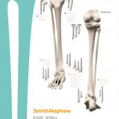 12348-en-V2-EVOS-SMALL-LE-Skeleton-Overview-Poster-0919.jpg